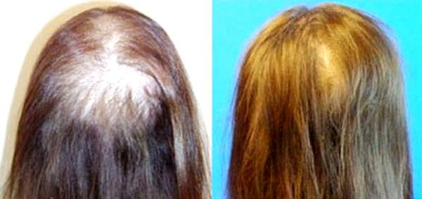 плазмолифтинг волос отзывы и фото